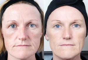 Efter en kur på sex gånger har porstorleken minskat och tonen förbättrats i huden
