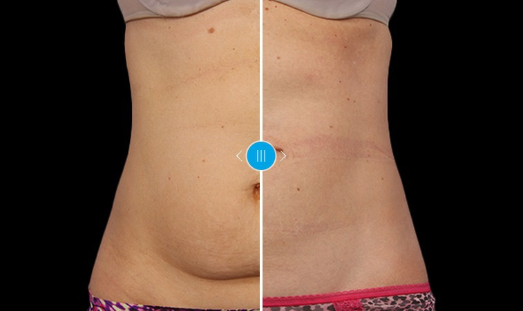 Två behandlingar senare med Coolsculpting. Bild från företagets hemsida