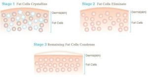 Mekaniskmerna bakom långvarig kyla innebär att fettcellerna kollapsar och dör. De bli färre.