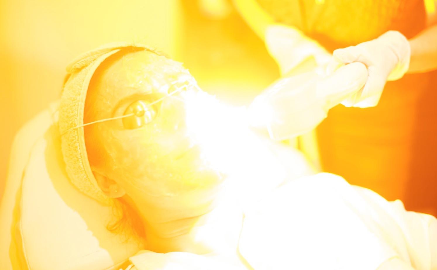 Intensivt pulserande ljus tar i de flesta fall bort solfläckar, men inte forever. Du måste hålla efter huden och skydda den fortsättningsvis om fläckarna inte ska komma tillbaka