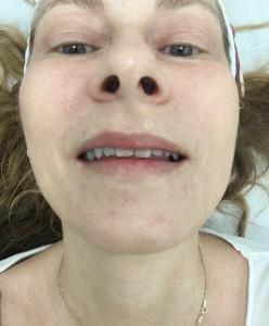 Jag ser tydliga förbättringar i huden efter en behandling. Här är min högra sida behandlad. (er vänstra). Jag tycker att man ser det tydligt på kindbenet. läppen och ögonområdet.