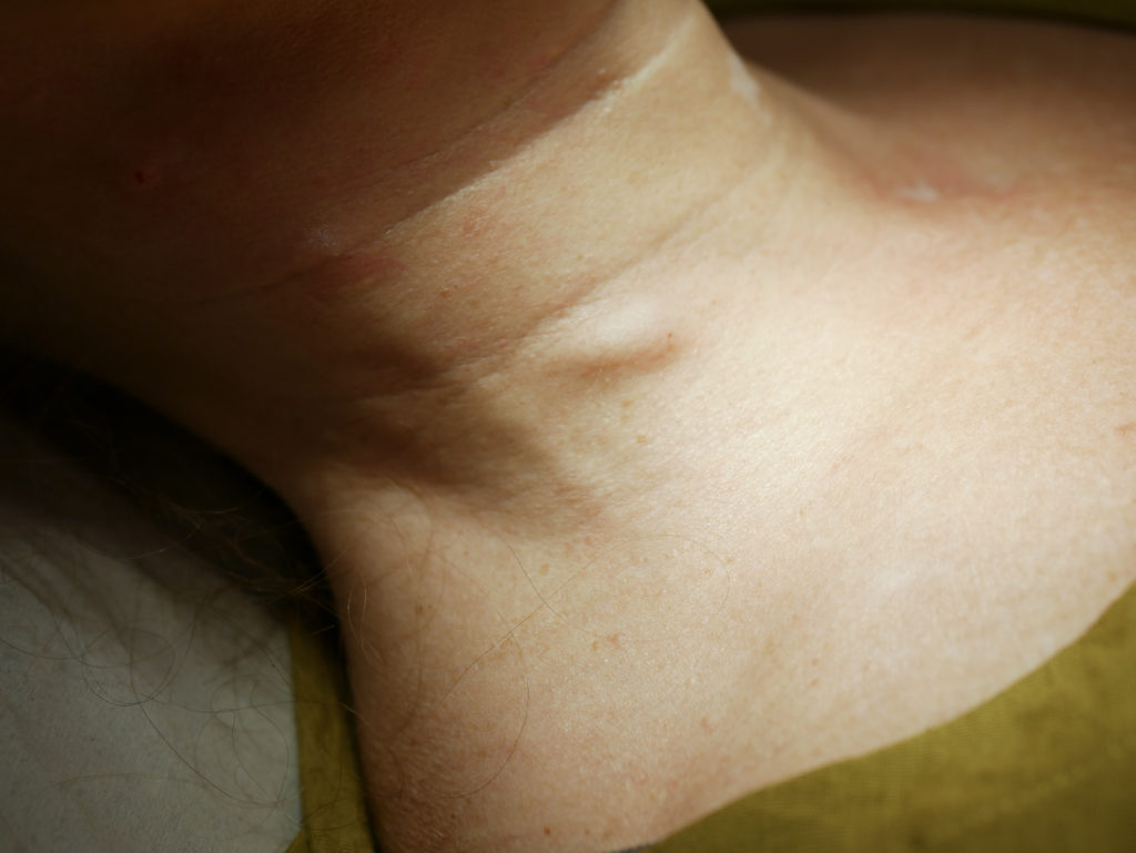 Hyaluronsyran lägger sig i en klump under huden som sedan fördelar sig snabbt under huden